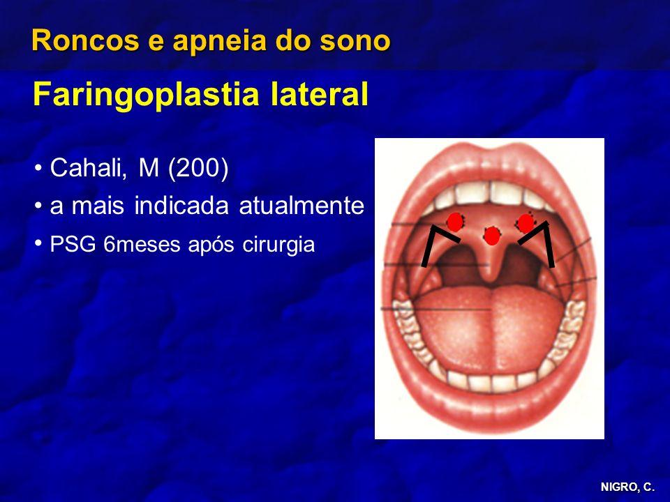 NIGRO, C. Roncos e apneia do sono Faringoplastia lateral Cahali, M (200) a mais indicada atualmente PSG 6meses após cirurgia