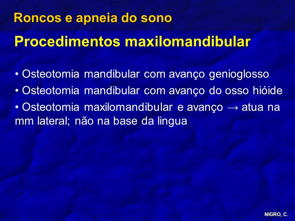 NIGRO, C. Roncos e apneia do sono Procedimentos maxilomandibular Osteotomia mandibular com avanço genioglosso Osteotomia mandibular com avanço do osso