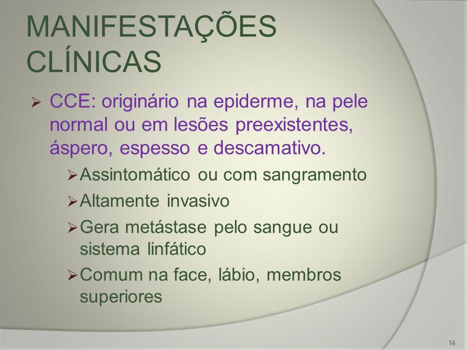 MANIFESTAÇÕES CLÍNICAS CCE: originário na epiderme, na pele normal ou em lesões preexistentes, áspero, espesso e descamativo. Assintomático ou com san