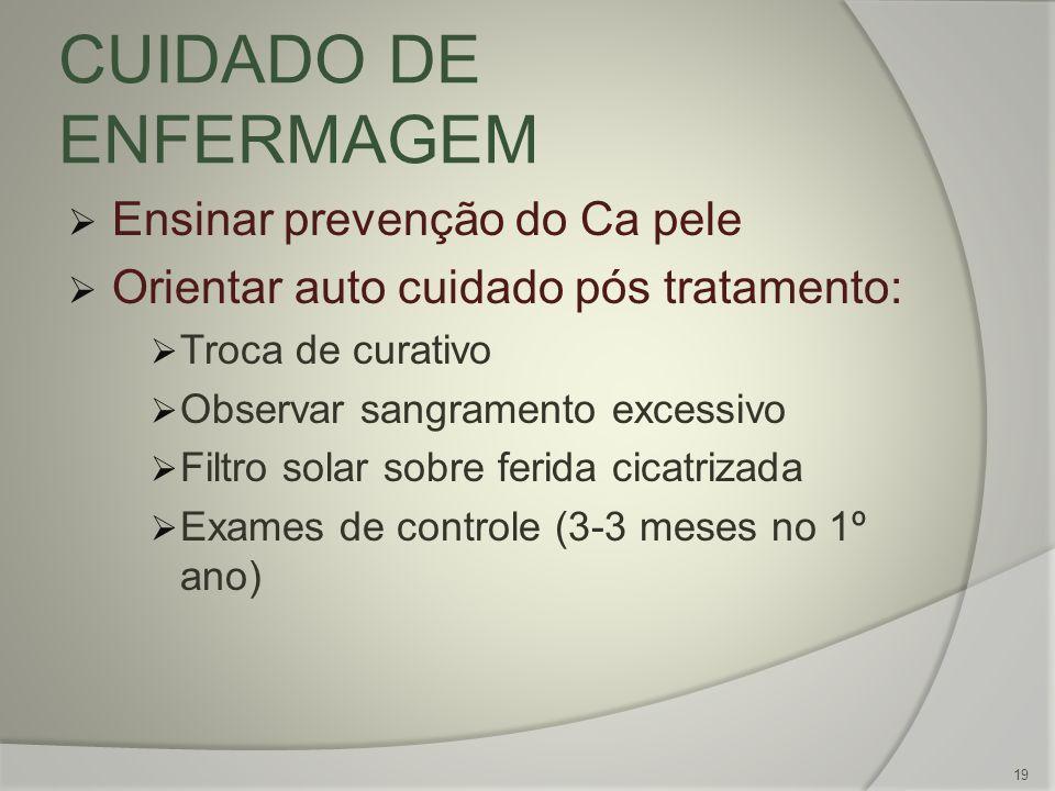 CUIDADO DE ENFERMAGEM Ensinar prevenção do Ca pele Orientar auto cuidado pós tratamento: Troca de curativo Observar sangramento excessivo Filtro solar