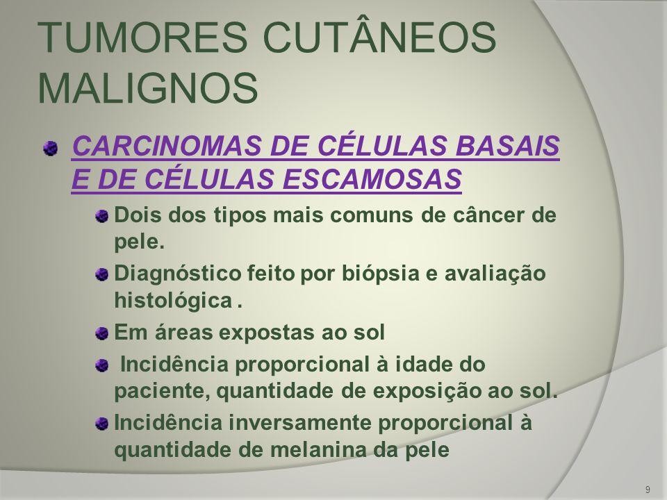 TUMORES CUTÂNEOS MALIGNOS CARCINOMAS DE CÉLULAS BASAIS E DE CÉLULAS ESCAMOSAS Dois dos tipos mais comuns de câncer de pele. Diagnóstico feito por bióp