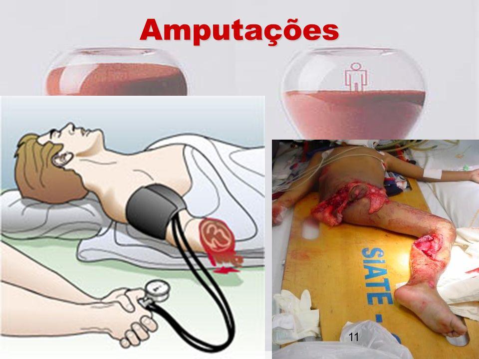 Amputações 11