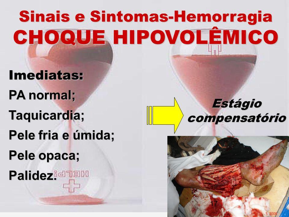 Sinais e Sintomas-Hemorragia CHOQUE HIPOVOLÊMICO Imediatas: PA normal; Taquicardia; Pele fria e úmida; Pele opaca; Palidez. Estágio compensatório 17