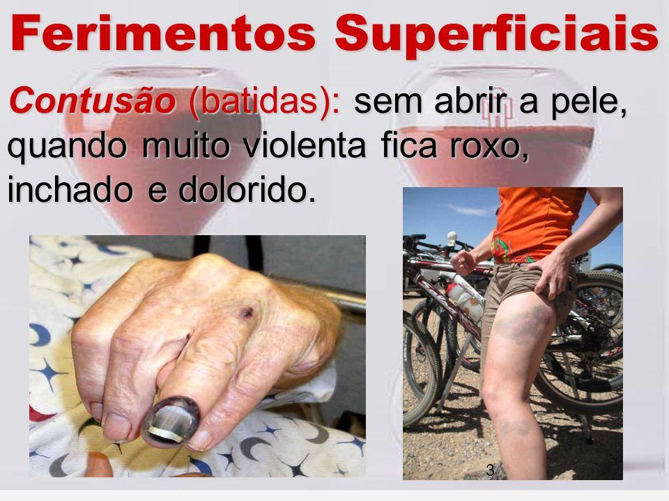 Ferimentos Superficiais Contusão (batidas): sem abrir a pele, quando muito violenta fica roxo, inchado e dolorido. 3
