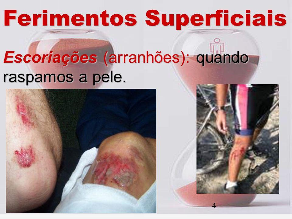 Ferimentos Superficiais Escoriações (arranhões): quando raspamos a pele. 4