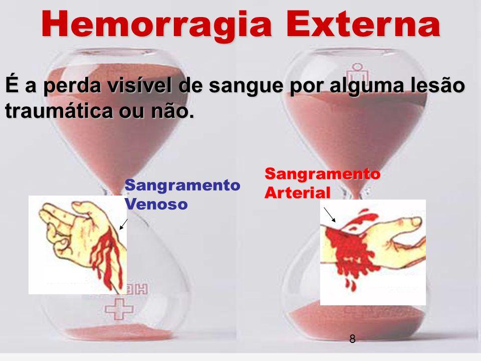 Hemorragia Externa É a perda visível de sangue por alguma lesão traumática ou não. Sangramento Venoso SangramentoArterial 8