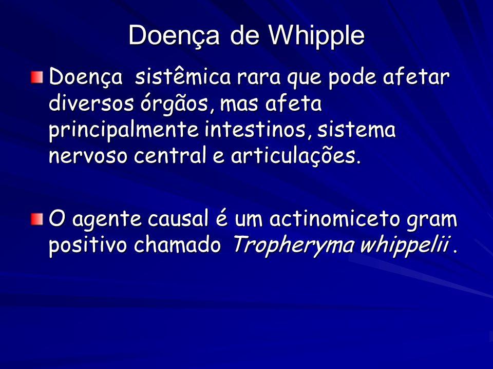 Doença de Whipple Doença sistêmica rara que pode afetar diversos órgãos, mas afeta principalmente intestinos, sistema nervoso central e articulações.