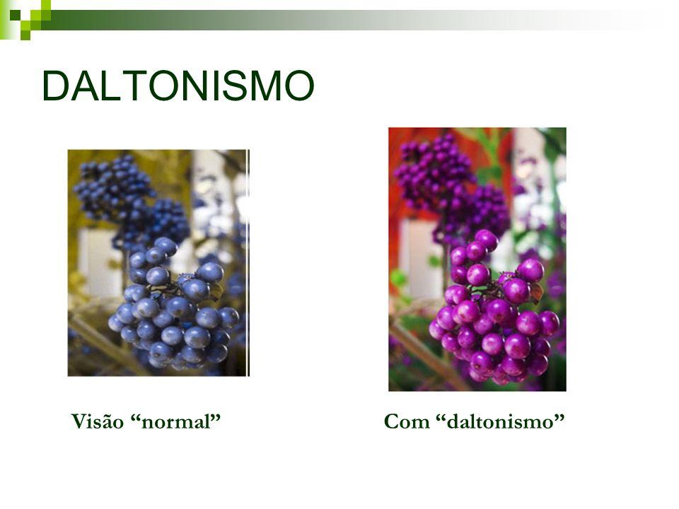 DALTONISMO Visão normalCom daltonismo
