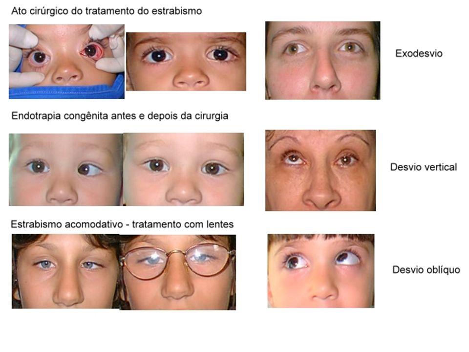 BAIXA VISÃO É um comprometimento da função visual que impossibilita uma visão útil para os afazeres habituais, mesmo após tratamento e/ou correção dos erros refrativos comuns como uso de óculos, lentes de contato ou implante de lentes intra-oculares.