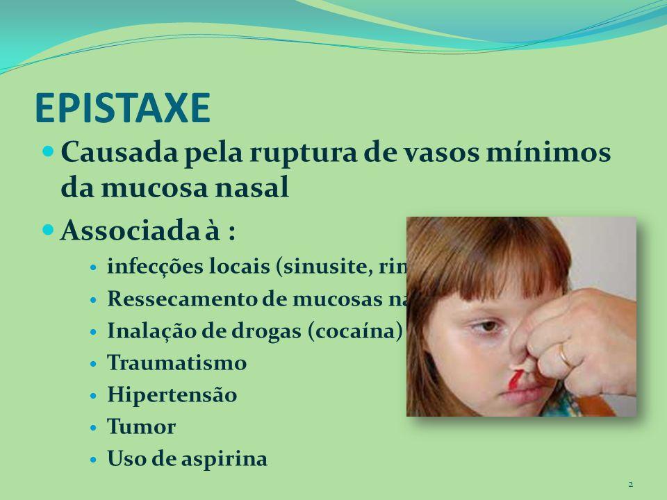 EPISTAXE Causada pela ruptura de vasos mínimos da mucosa nasal Associada à : infecções locais (sinusite, rinite) Ressecamento de mucosas nasais Inalaç