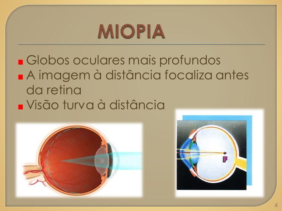 Globos oculares mais profundos A imagem à distância focaliza antes da retina Visão turva à distância 4