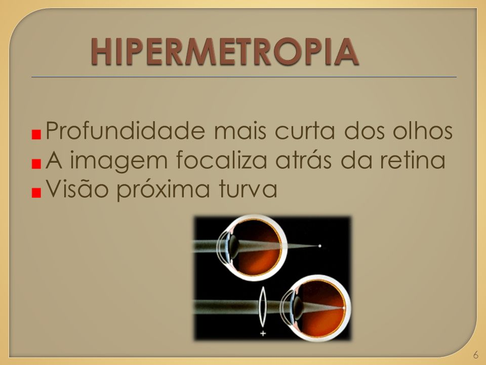 VISÃO HIPERMÉTROPE 7