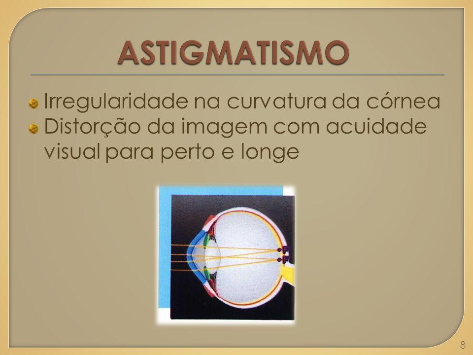 Irregularidade na curvatura da córnea Distorção da imagem com acuidade visual para perto e longe 8