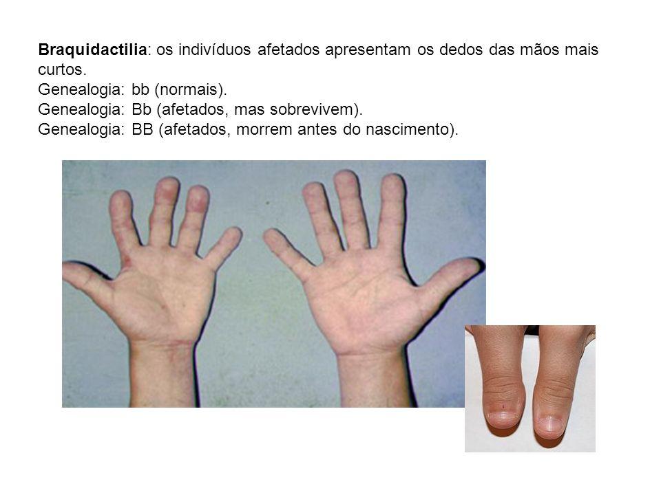 Braquidactilia: os indivíduos afetados apresentam os dedos das mãos mais curtos. Genealogia: bb (normais). Genealogia: Bb (afetados, mas sobrevivem).