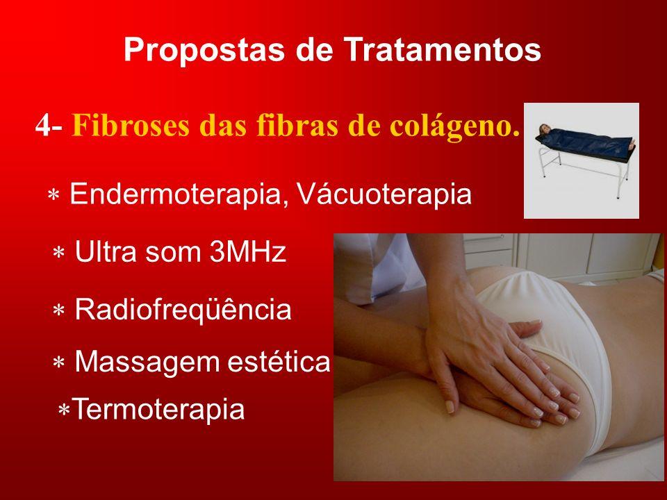 Propostas de Tratamentos 4- Fibroses das fibras de colágeno. Endermoterapia, Vácuoterapia Ultra som 3MHz Radiofreqüência Massagem estética Termoterapi