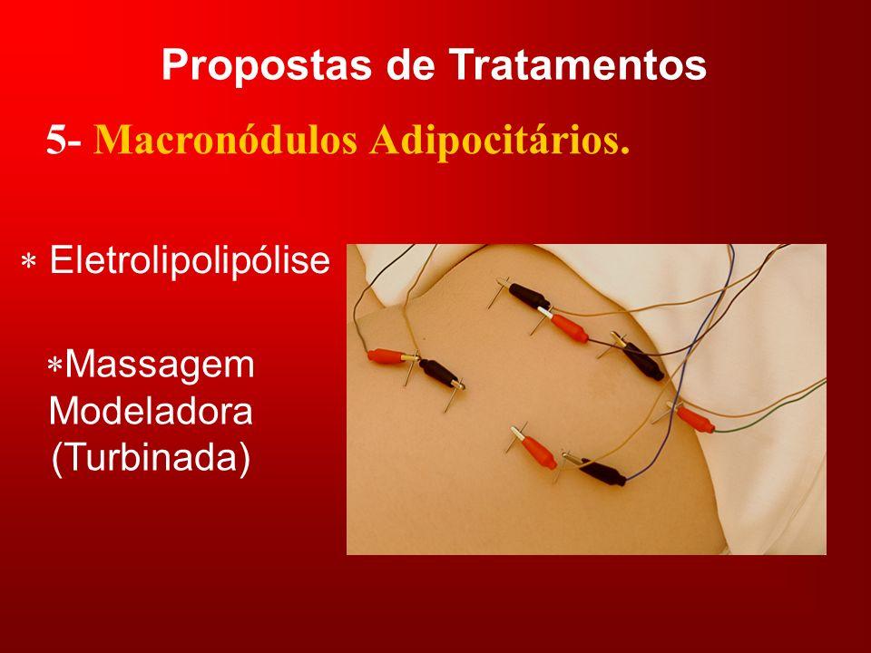 Propostas de Tratamentos 5- Macronódulos Adipocitários. Massagem Modeladora (Turbinada) Eletrolipolipólise