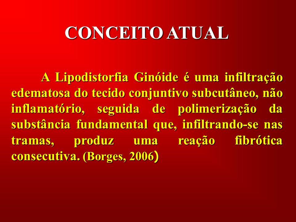 CONCEITO ATUAL A Lipodistorfia Ginóide é uma infiltração edematosa do tecido conjuntivo subcutâneo, não inflamatório, seguida de polimerização da subs
