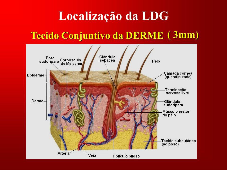 Localização da LDG Tecido Conjuntivo da DERME ( 3mm)