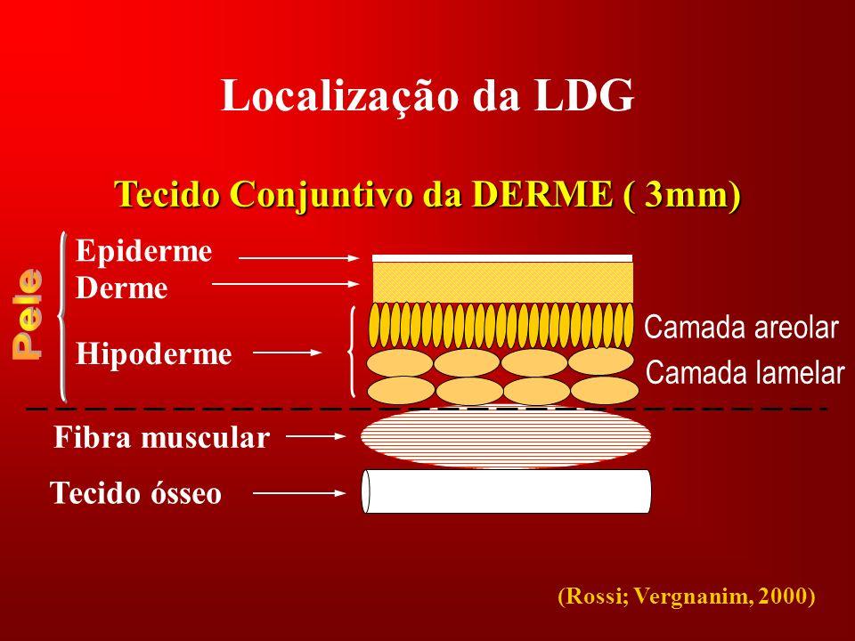 Localização da LDG Tecido Conjuntivo da DERME ( 3mm) Epiderme Derme Camada areolar Camada lamelar Hipoderme Fibra muscular Tecido ósseo (Rossi; Vergna