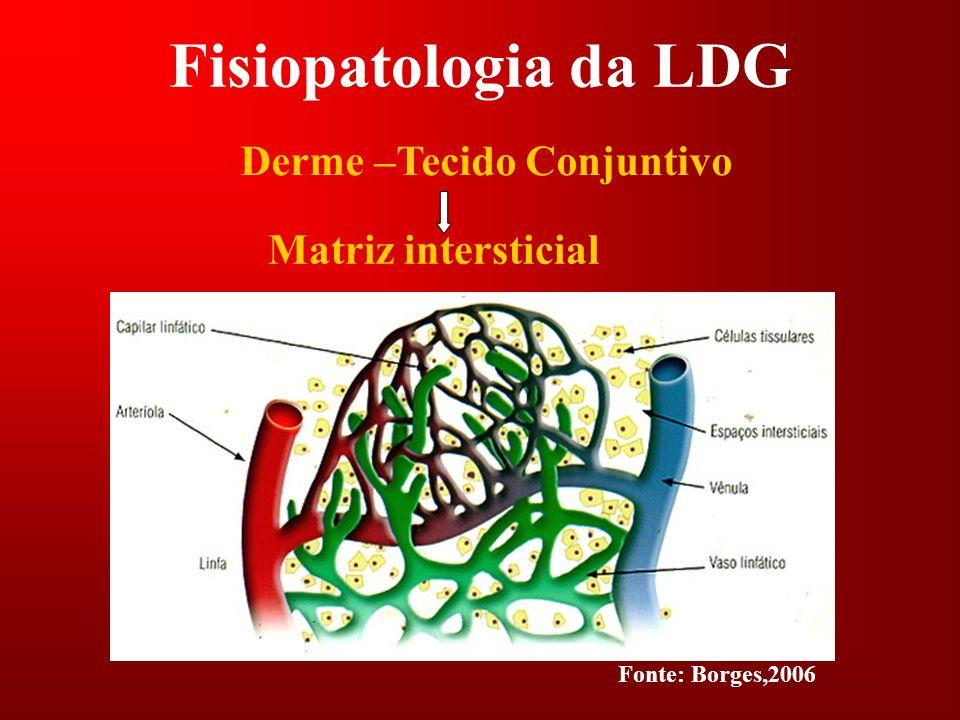 Fisiopatologia da LDG Derme –Tecido Conjuntivo Matriz intersticial Fonte: Borges,2006