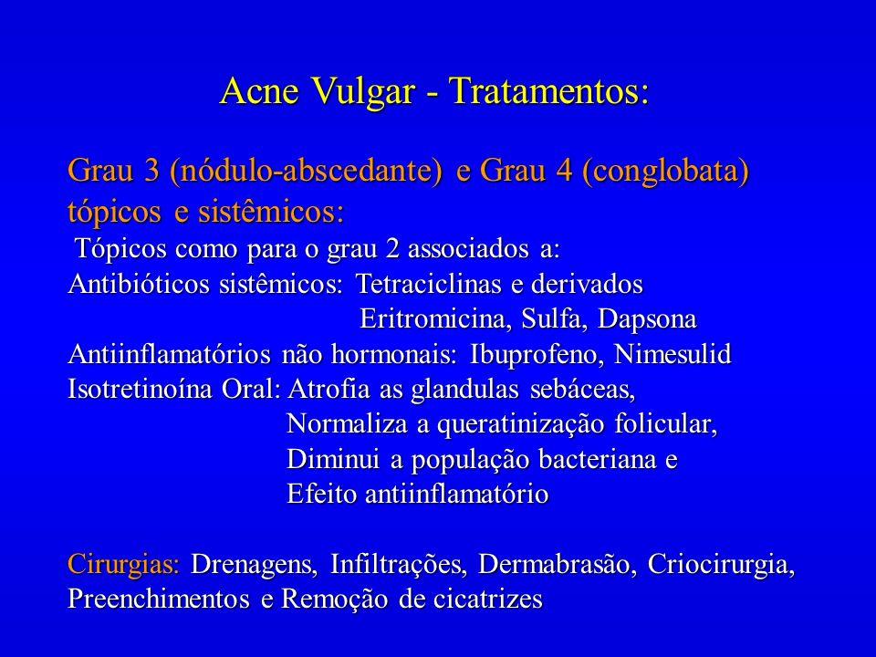 Acne Vulgar - Tratamentos: Grau 3 (nódulo-abscedante) e Grau 4 (conglobata) tópicos e sistêmicos: Tópicos como para o grau 2 associados a: Tópicos com