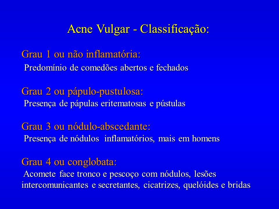 Acne Vulgar - Classificação: Grau 1 ou não inflamatória: Predomínio de comedões abertos e fechados Predomínio de comedões abertos e fechados Grau 2 ou