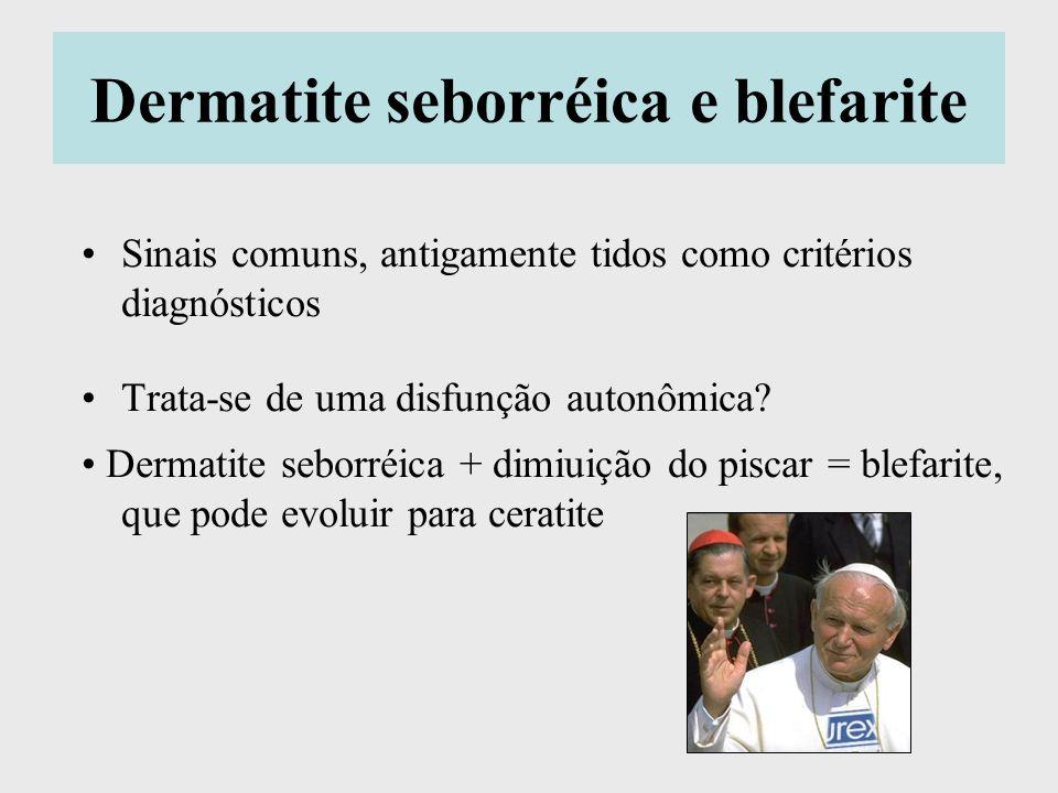 Dermatite seborréica e blefarite Sinais comuns, antigamente tidos como critérios diagnósticos Trata-se de uma disfunção autonômica? Dermatite seborréi
