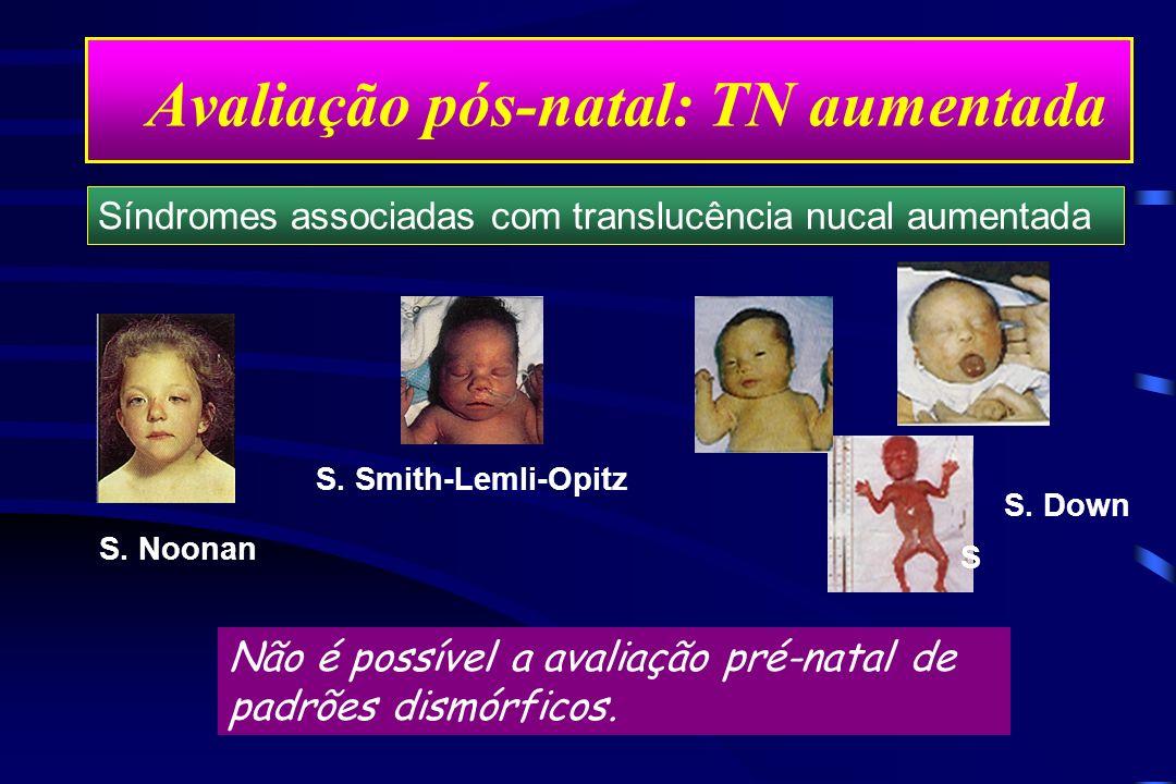 Avaliação pós-natal: TN aumentada Não é possível a avaliação pré-natal de padrões dismórficos. S. Noonan S. Smith-Lemli-Opitz S Síndromes associadas c