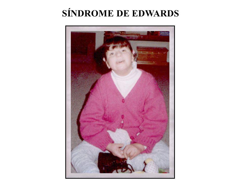 Síndrome de Edwards Dobramento típico dos dedos