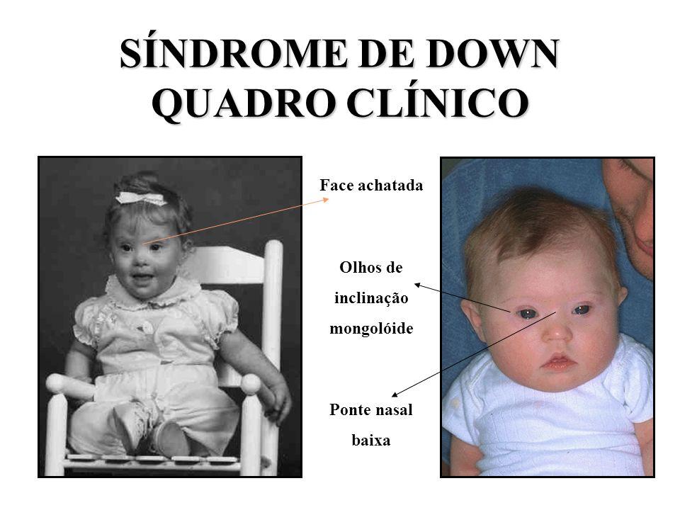 CORRELAÇÃO COM IDADE MATERNA = TRISSOMIA SIMPLES