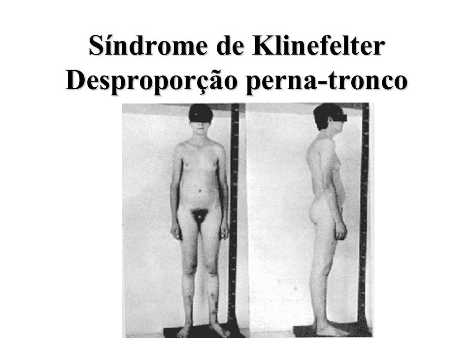 Síndrome de Klinefelter Ginecomastia