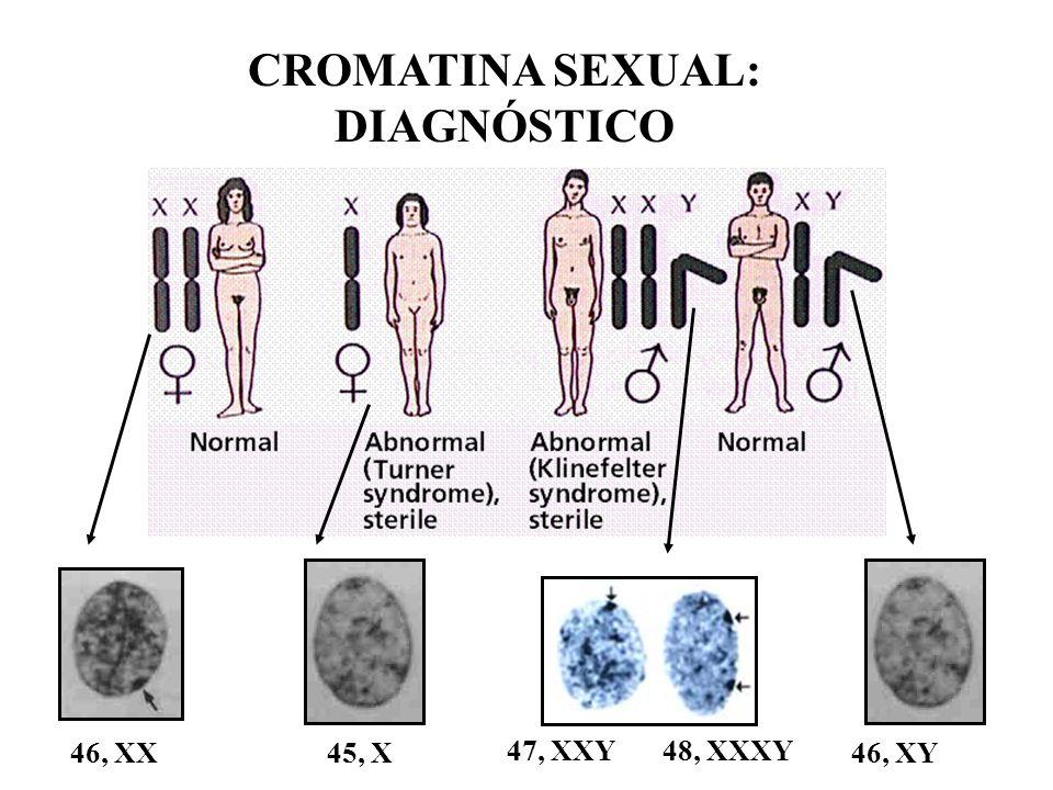 Síndrome de Klinefelter Hipogenitalismo / Hipoganadismo