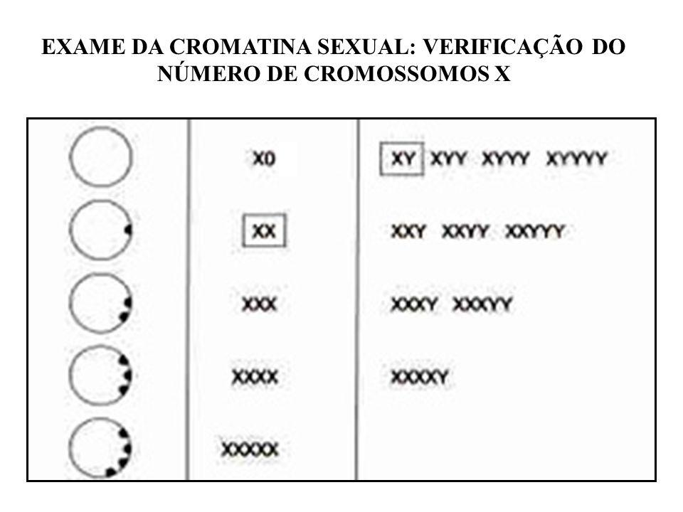 46, XX45, X46, XY 47, XXY48, XXXY CROMATINA SEXUAL: DIAGNÓSTICO