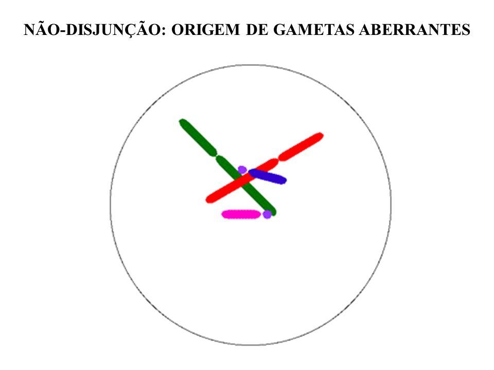 NÃO-DISJUNÇÃO Gameta com um cromossomo a mais Gameta com um cromossomo a menos