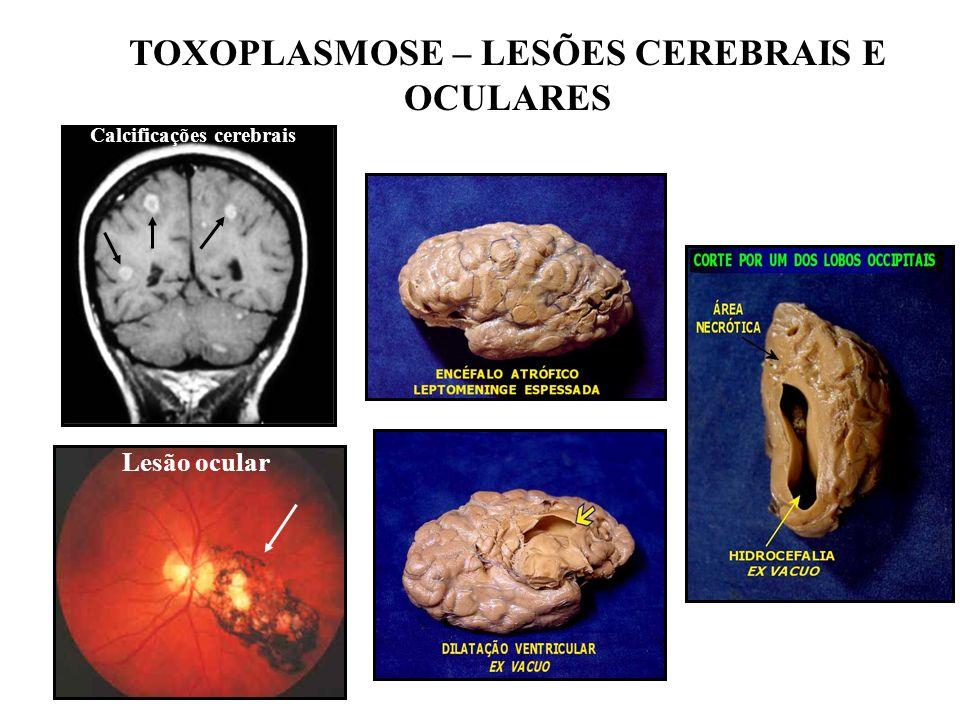 TOXOPLASMOSE – LESÕES CEREBRAIS E OCULARES Calcificações cerebrais Lesão ocular