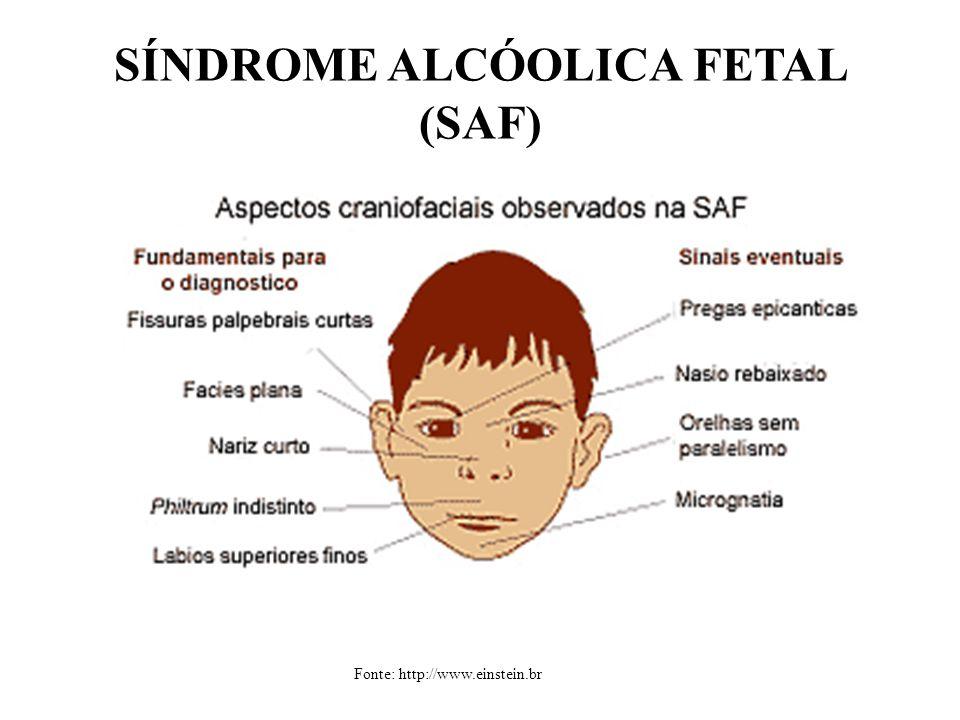 SÍNDROME ALCÓOLICA FETAL (SAF) Fonte: http://www.einstein.br