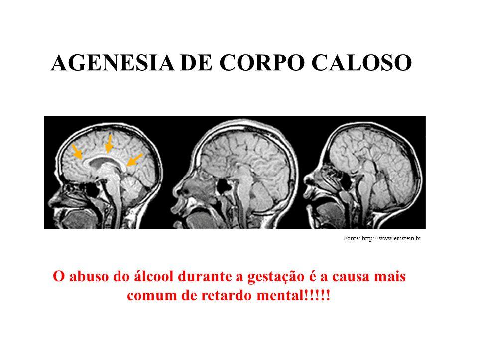 AGENESIA DE CORPO CALOSO O abuso do álcool durante a gestação é a causa mais comum de retardo mental!!!!! Fonte: http://www.einstein.br