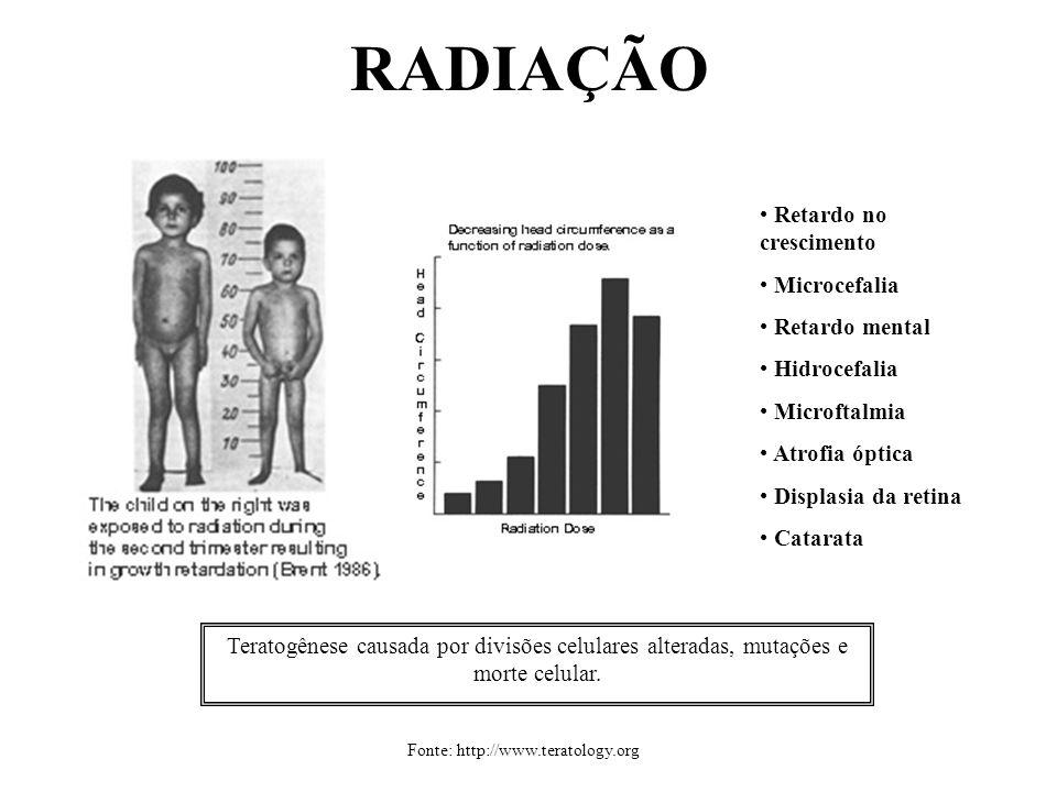 RADIAÇÃO Retardo no crescimento Microcefalia Retardo mental Hidrocefalia Microftalmia Atrofia óptica Displasia da retina Catarata Fonte: http://www.te