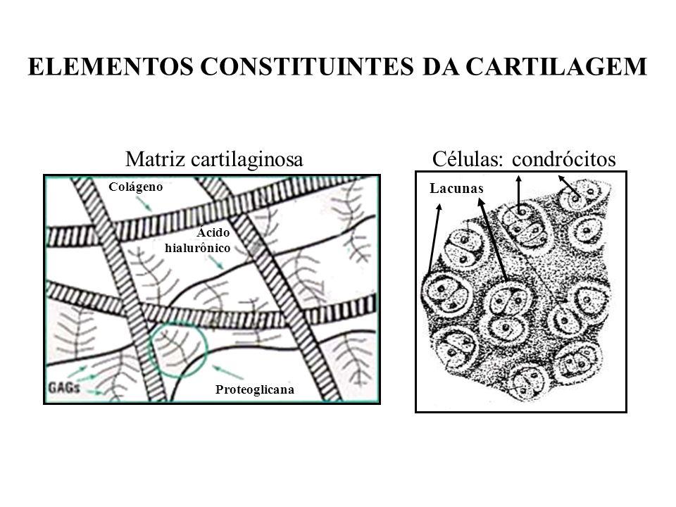 TIPOS DE CARTILAGEM CARTILAGEM HIALINA CARTILAGEM ELÁSTICA CARTILAGEM FIBROSA