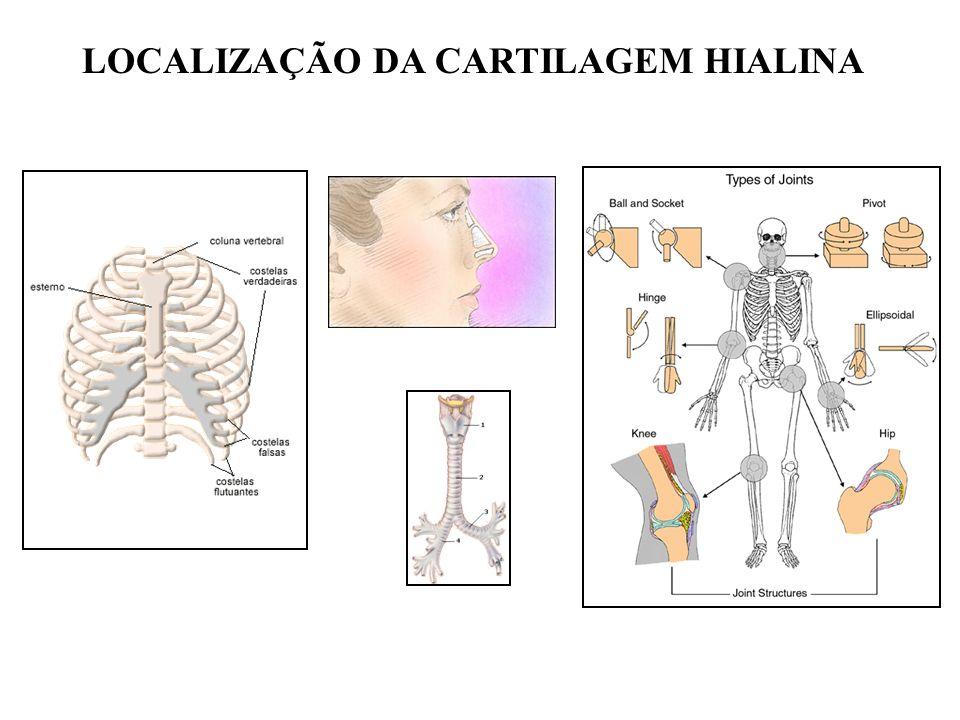 MATRIZ DA CARTILAGEM HIALINA Proteoglicanas hidratadas Proteoglicana + Ácido hialurônico + Colágeno GRANDE RESISTÊNCIA Água de solvatação da proteoglicana ABSORÇÃO DE IMPACTOS