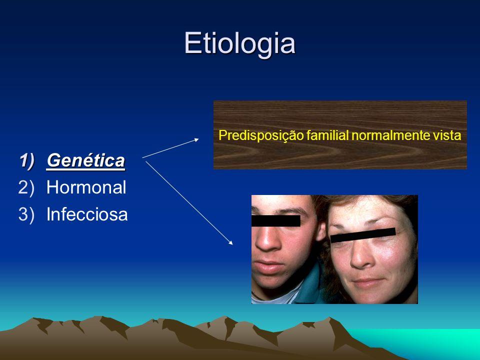 Etiologia 1)Genética 2)Hormonal 3)Infecciosa Predisposição familial normalmente vista