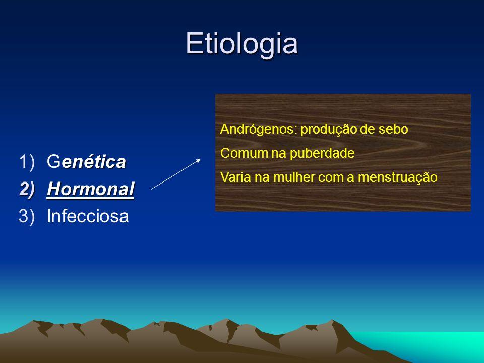 Etiologia enética 1)Genética 2)Hormonal 3)Infecciosa Andrógenos: produção de sebo Comum na puberdade Varia na mulher com a menstruação