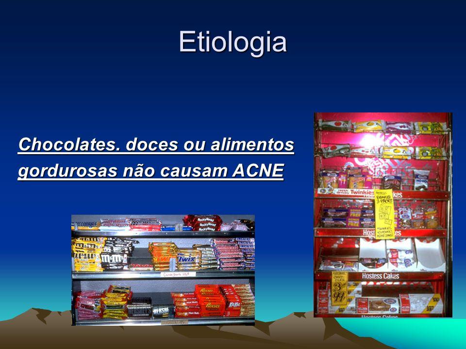 Etiologia Chocolates. doces ou alimentos gordurosas não causam ACNE