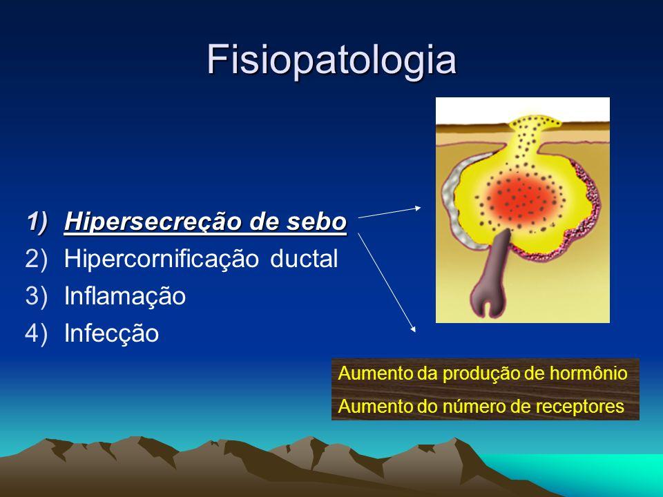 Fisiopatologia 1)Hipersecreção de sebo 2)Hipercornificação ductal 3)Inflamação 4)Infecção Aumento da produção de hormônio Aumento do número de recepto