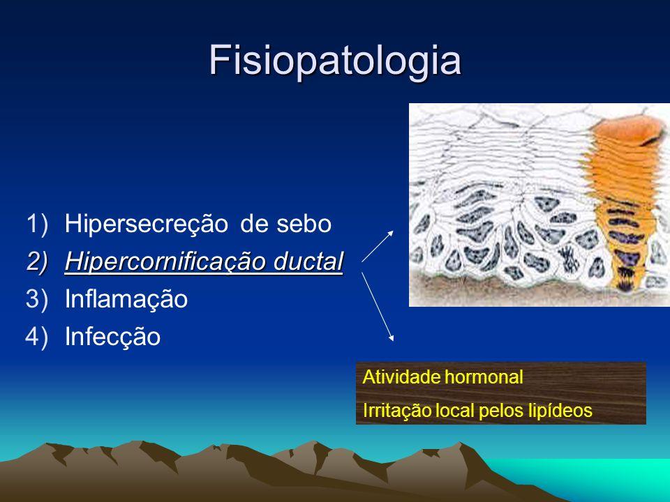 Fisiopatologia 1)Hipersecreção de sebo 2)Hipercornificação ductal 3)Inflamação 4)Infecção Atividade hormonal Irritação local pelos lipídeos