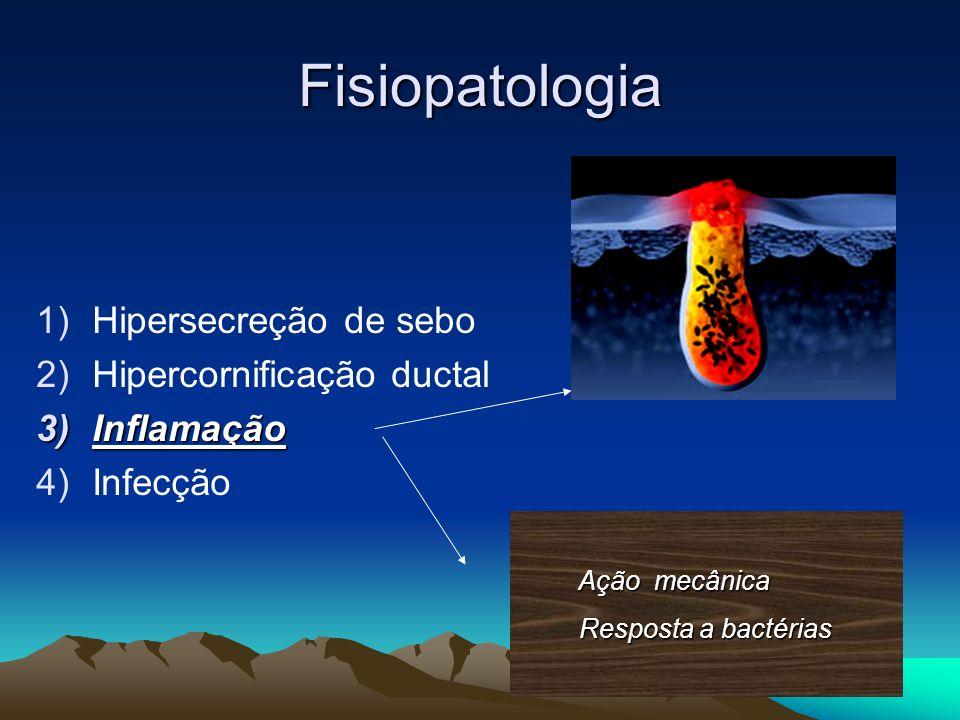 Fisiopatologia 1)Hipersecreção de sebo 2)Hipercornificação ductal 3)Inflamação 4)Infecção Ação mecânica Ação mecânica Resposta a bactérias Resposta a