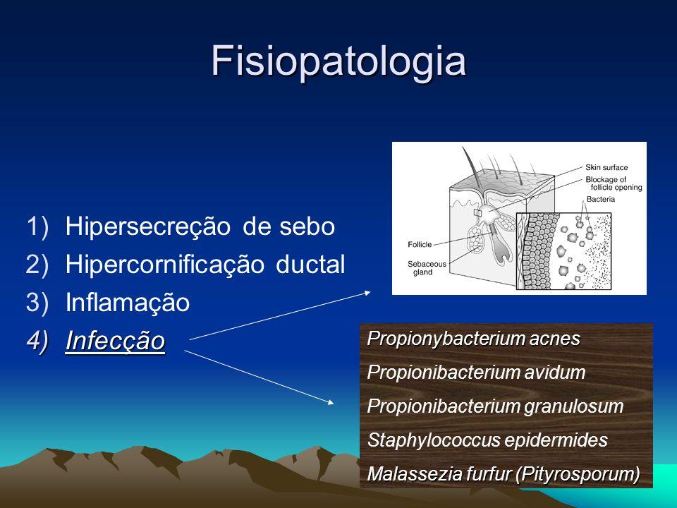Fisiopatologia 1)Hipersecreção de sebo 2)Hipercornificação ductal 3)Inflamação 4)Infecção Propionybacterium acnes Propionibacterium avidum Propionibac
