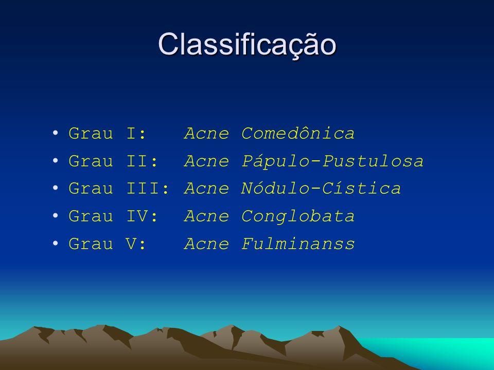 Classificação Grau I: Acne Comedônica Grau II: Acne Pápulo-Pustulosa Grau III: Acne Nódulo-Cística Grau IV: Acne Conglobata Grau V: Acne Fulminanss