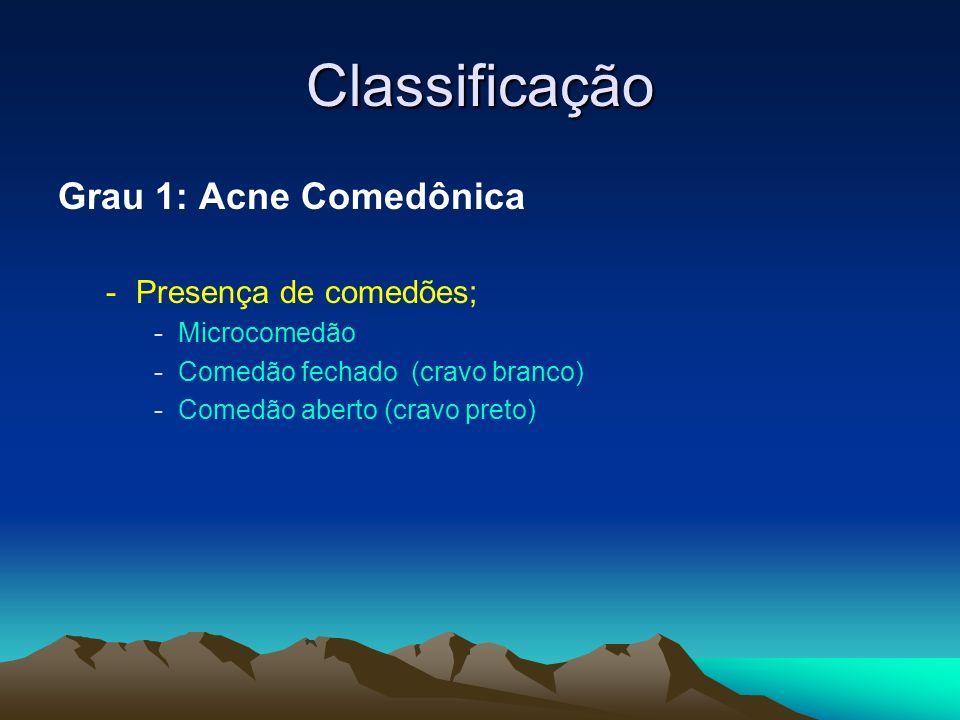 Classificação Grau 1: Acne Comedônica -Presença de comedões; -Microcomedão -Comedão fechado (cravo branco) -Comedão aberto (cravo preto)
