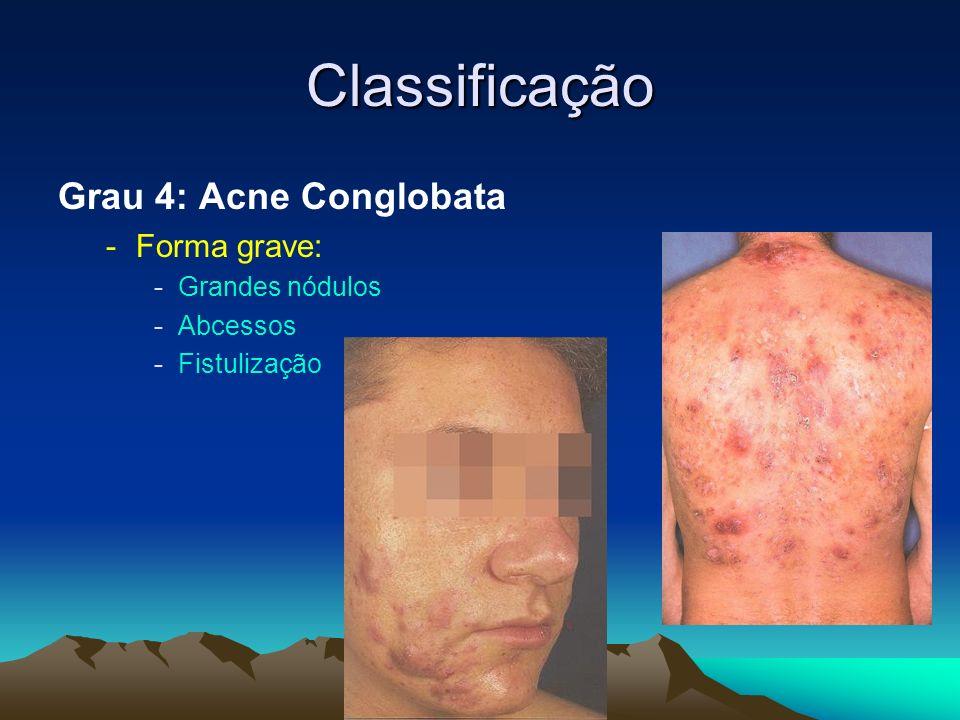 Classificação Grau 4: Acne Conglobata -Forma grave: -Grandes nódulos -Abcessos -Fistulização